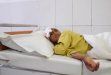 Photo of Fighting causes severe trauma casualties in Afghanistan